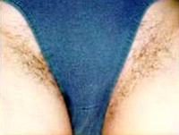 bikinizone_1_vorher